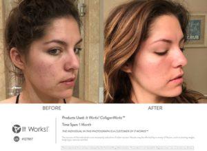 Betere huid, haar en nagels? Combineer het met 1 supplement, de CollagenWorks