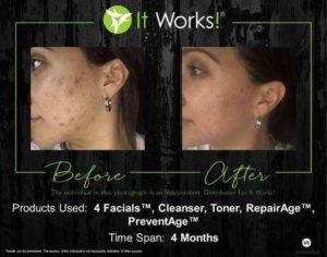 Acné, puistjes en littekens verminderen met It Works