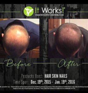 It Works! Hair Skin Nails kan ook bij mannen haar helpen groeien