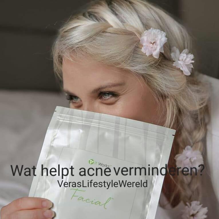Wat helpt acné verminderen? Tips over huid- en lichaamsverzorging.