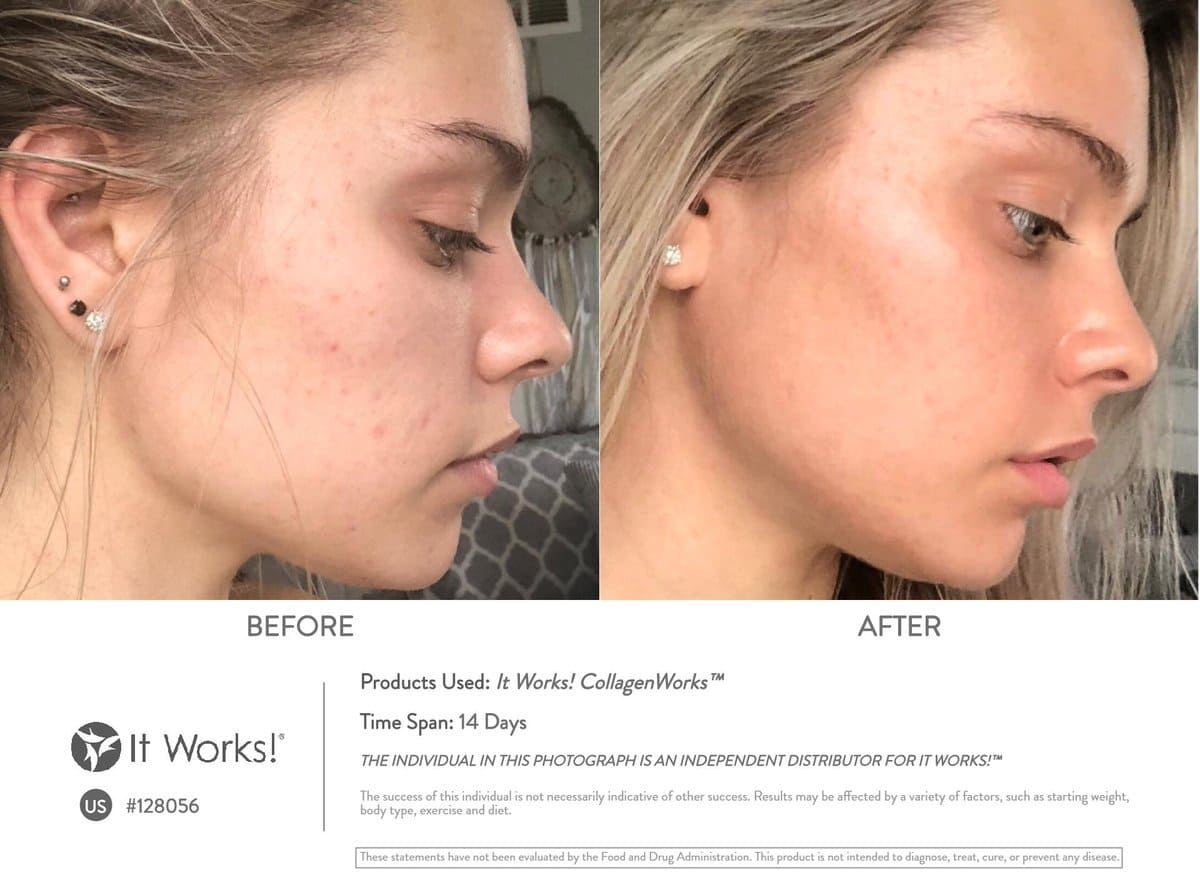 Welke supplementen helpen bij acné? Slechts 14 dagen met de It Works CollagenWorks