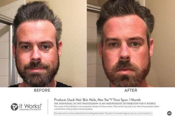 Ook mannen gaan op voor gezonder en voller haar! Vitamines en mineralen in de Hair Skin Nails helpen ondersteunen