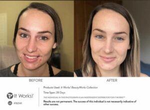 Acné of puistjes? Je huid verbeteren kun je zelf thuis met It Works en Vera's huidprogramma