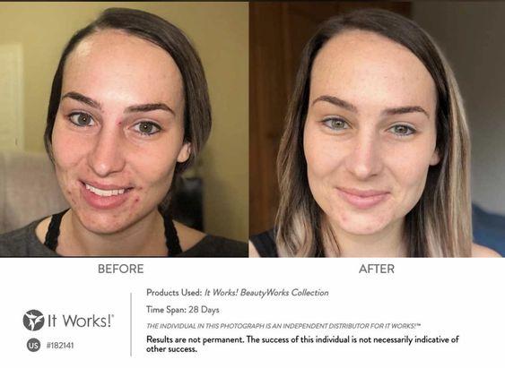 Mooie resultaten in slechts dagen met de BeautyWorks?