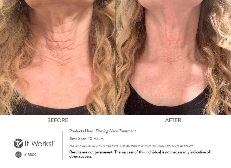 De It Works & Dr. Nassif Firming Neck Treatment helpt huid liften en verstevigen met natuurlijke bestanddelen.