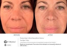 Ook bij de oudere huid kan in slechts dagen verbetering optreden met de BeautyWorks
