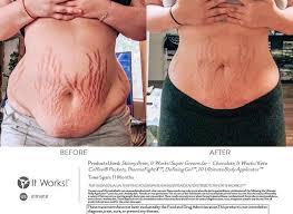 Pijnlijk weefsel door stretchmarks bij een zwangerschap kun je gelukkig verlichten met het It Works assortiment!