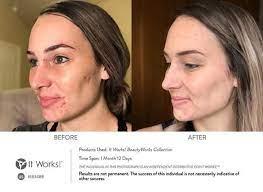 Een betere huid met BeautyWorks!
