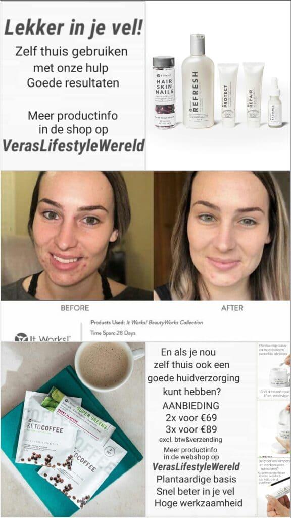 Verminder acné blijvend. Zorg thuis ook voor goede huidverzorging en supplementen!